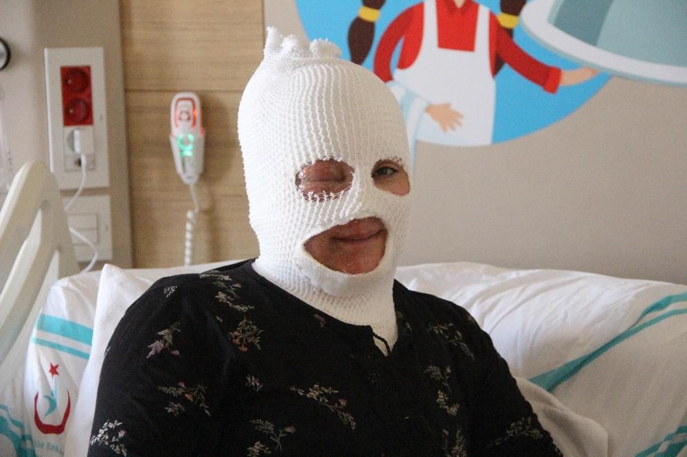 Başından aşağıya çaydanlık dökülen kadın feci şekilde yandı